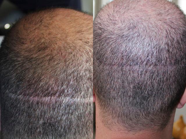 Видимый шрам на затылке от пересадки волос методом FUT