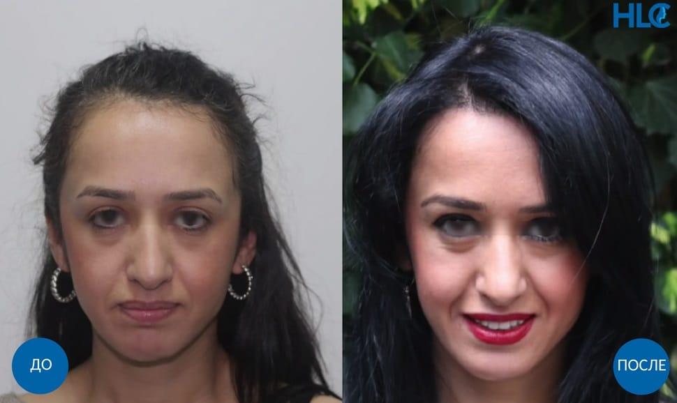 Пересадка волос на голову женщине