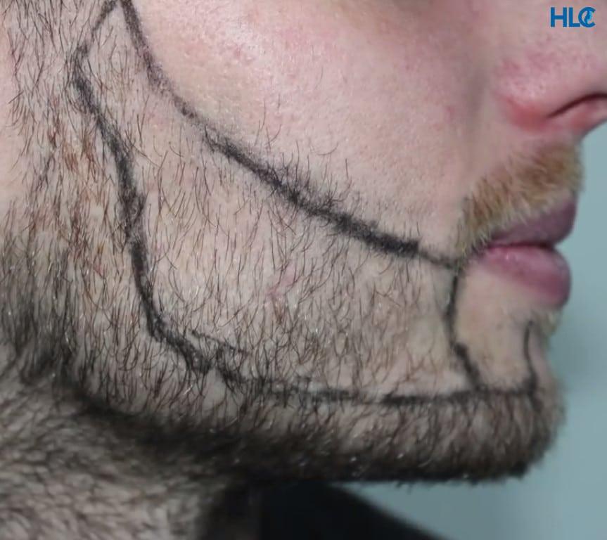 Проблемы с ростом бороды у мужчин