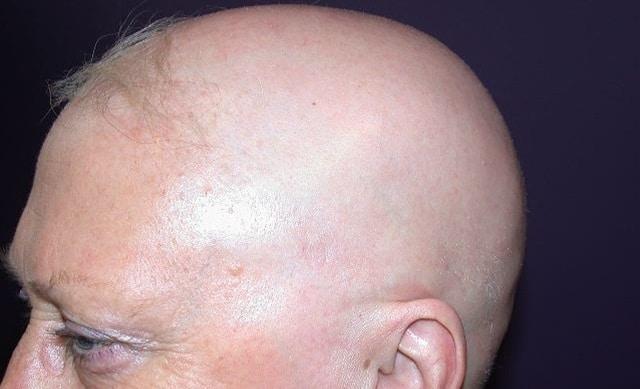 Lekovi za alopeciju