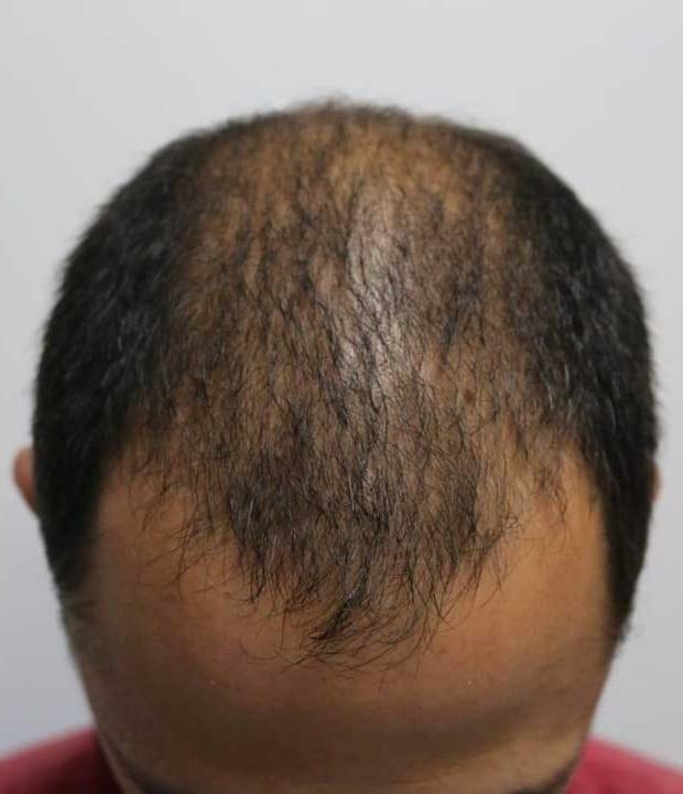 Какая стоимость пересадки волос