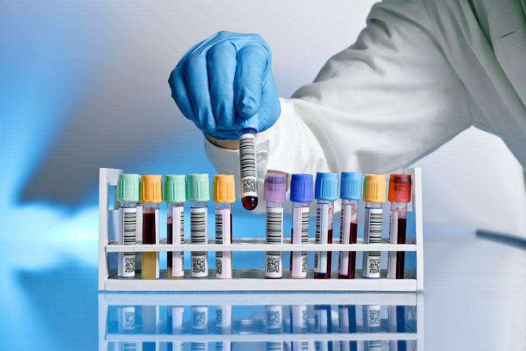 противопоказания к ПРП-терапии при алопеции