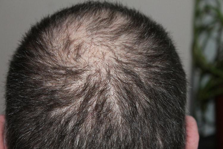 Поредение волос на макушке и затылке у мужчины