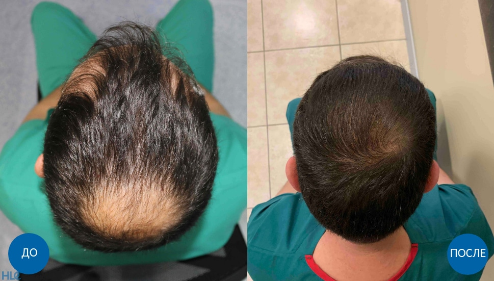 Результат пересадки волос мужчине с затылка на макушку