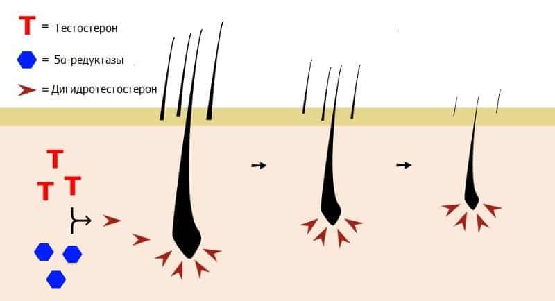 Образование и действие дигидротестостерона на волосяной фолликул