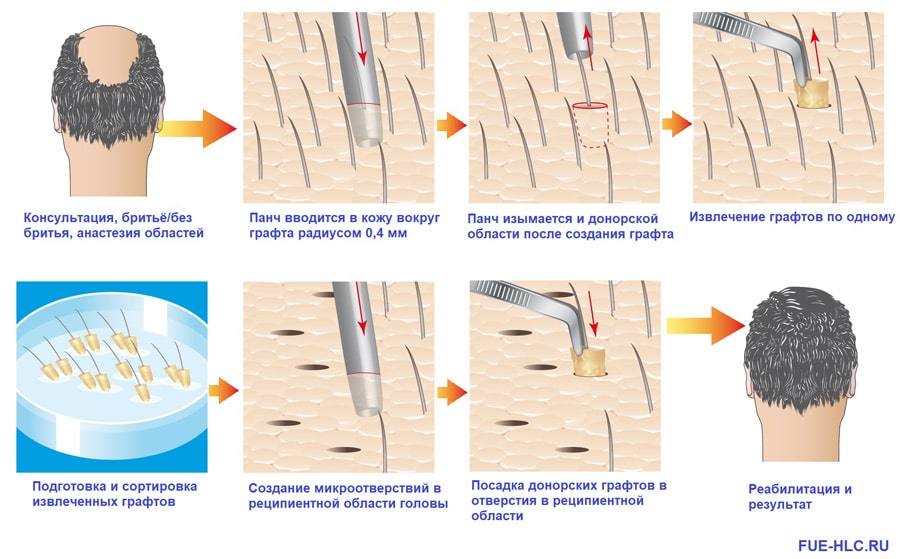 Схема процедуры пересадки волос на голову