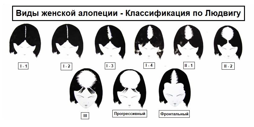 Виды алопеции у женщин