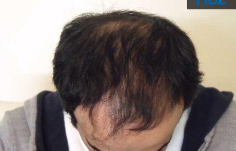 До пересадки, вид сверху, залысины на передней линии роста волос