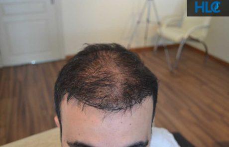 До пересадки волос. Заметно поредение волос. Вид спереди.