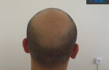 До трансплантации волос. Заметно сильное поредение передней линии и появление залысин. Вид теменную зону