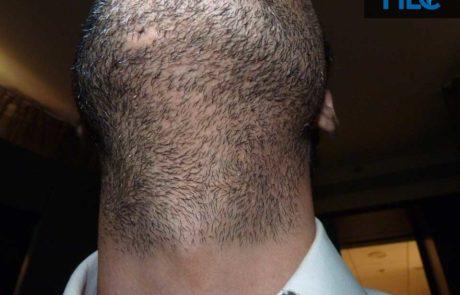 Вид на донорскую зону бороды, спустя 11 месяцев после пересадки.