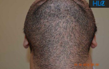 Вид на донорскую зону бороды, спустя 12 месяцев.