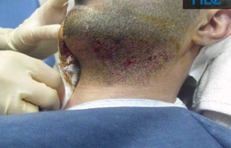 Донорская зона бороды сразу после операции.