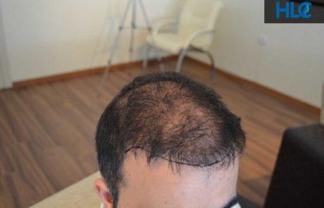 До пересадки волос. Заметно поредение волос. Вид сбоку.