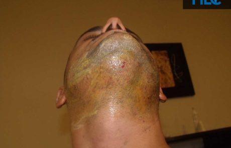 Вид на донорскую зону бороды