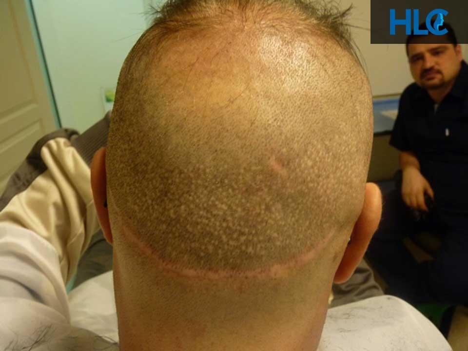 Шрам от пересадки волос методом FUT