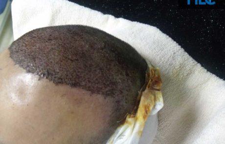 Сразу после пересадки, вид сбоку на переднюю линию роста волос