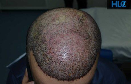 Сразу после пересадки, вид сверху на переднюю линию роста волос