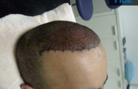 Сразу после пересадки, вид слева на переднюю линию роста волос