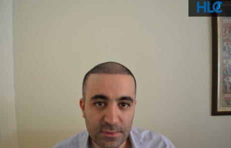 Вид переднюю линию роста волос спустя месяц после пересадки
