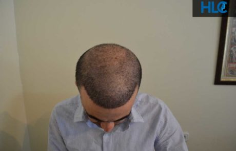 Вид сверху переднюю линию роста волос спустя месяц после пересадки