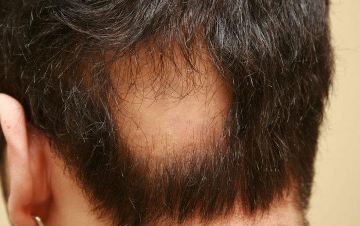 Причины и лечение гнездной алопеции у мужчин и женщин