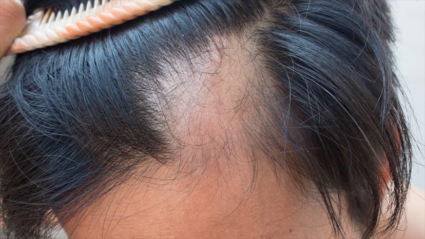 Гнездная алопеция - Причины, лечение и профилактика