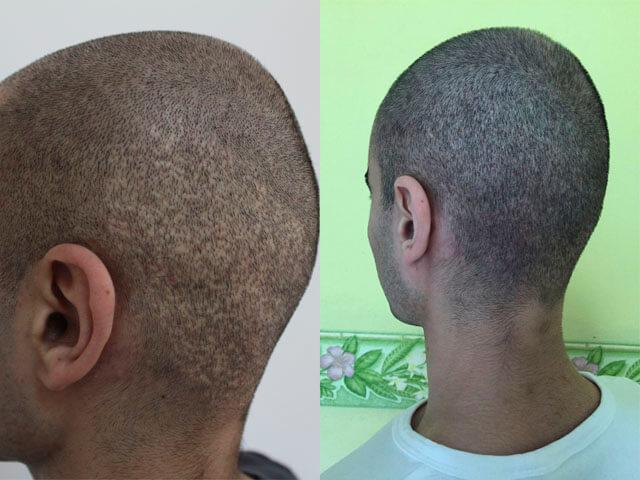 До и после трихопигментации головы мужчине