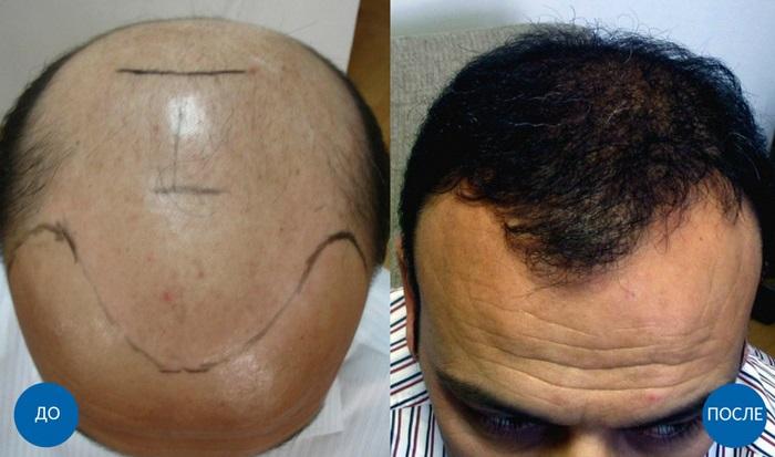 Пересадка волос для мужчин
