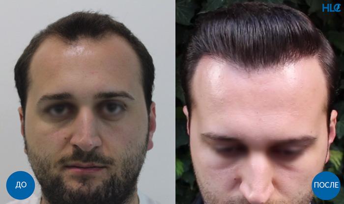 Пересадка волос мужчинам