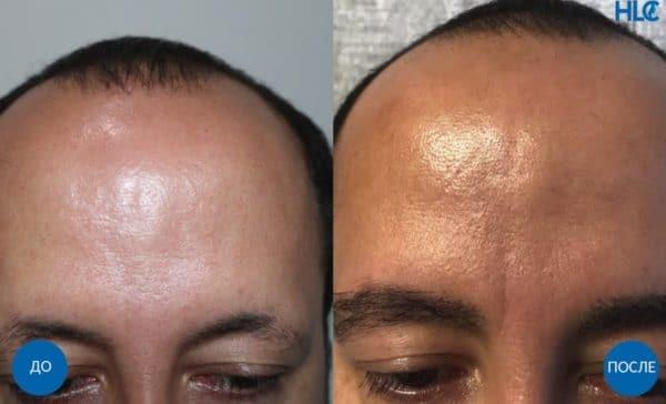 До и после пересадки волос на брови