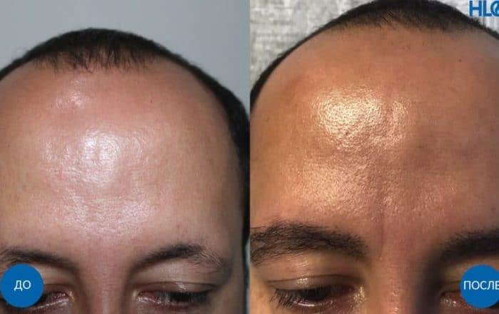 Пересадка 400 графтов на брови мужчине