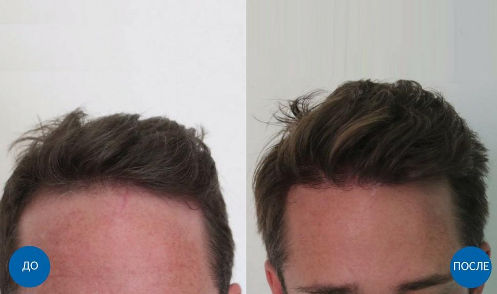 клипса-профиль фото до и после пересадки волос потому