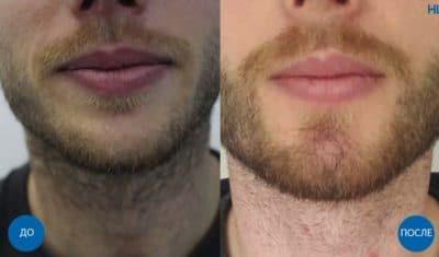 Результат пересадки 1000 графтов волос на бороду
