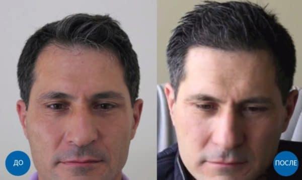 Фото результатов пересадки 1600 графтов волос мужчине