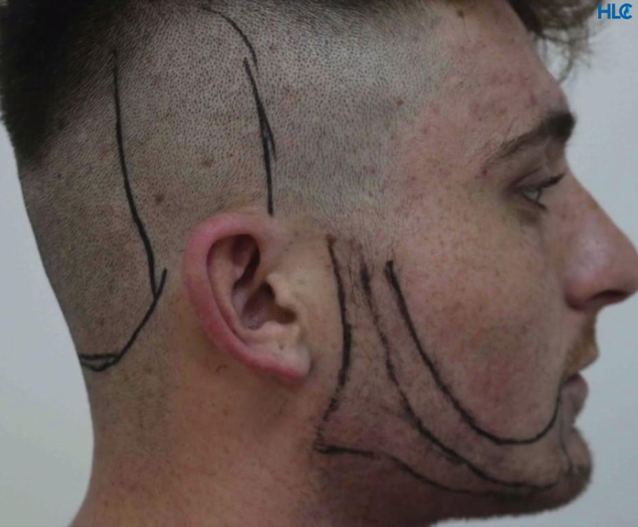 Планирование дизайна бороды