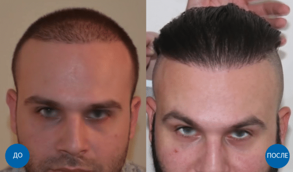 Результат пересадки волос
