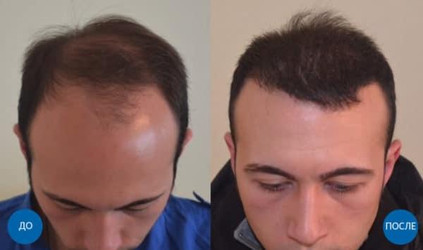 пересадка 3400 волос мужчине с бороды и с затылка
