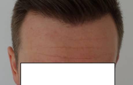 Спустя 9 месяцев после трансплантации волос на голову