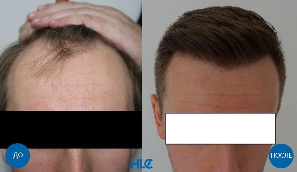 До и после пересадки 2600 графтов