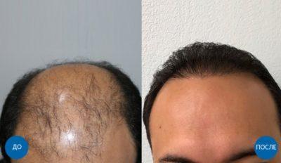 Фото результатов пересадки 3625 графтов мужчине