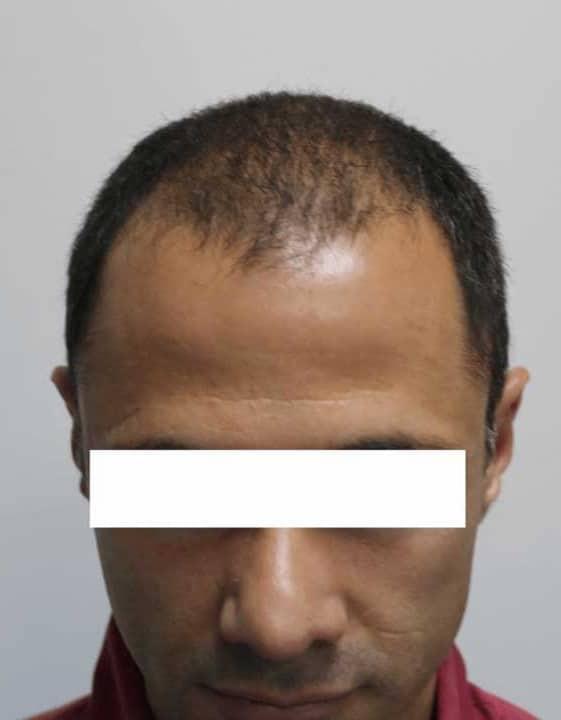 Стоимость пересадки волос