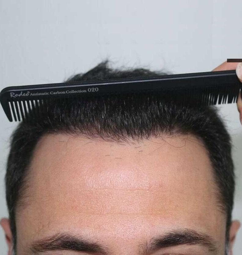 Цена трансплантации волос