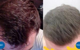 Отзыв пацента о пересадке волос и результат