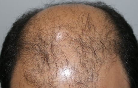 До пересадки волос