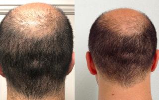 Слева - спустя 13 дней, справа - до пересадки