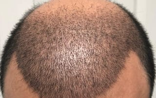 Спустя 13 дней после трансплантации волос