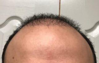Спустя полтора месяца после пересадки волос