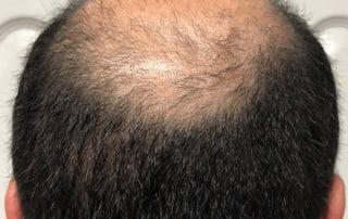 Через 45 дней после трансплнтации волос