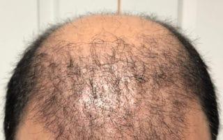 Спустя полтора месяца после бесшовной пересадки волос